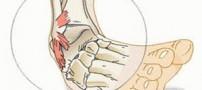 آنچه درباره کبودی و رگ به رگ شدن پا می خواهید بدانید