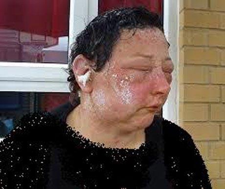 چهره ترسناک این زن در اثر رنگ مو (عکس)