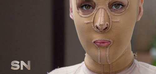 این زن سوخته پس از 2 سال چهره پنهانش را آشکار کرد! (عکس)