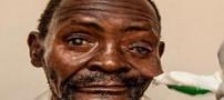 روش منحصر بفرد برای بینایی مرد 69 ساله در 6 دقیقه