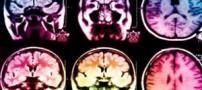 کشف راهی جدید برای ترمیم مغز پس از سکته مغزی