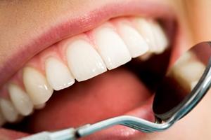 تفکرات غلط درباره بهداشت دندان