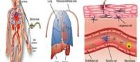 اطلاعات کامل درباره بیماری ابولا (Ebola)