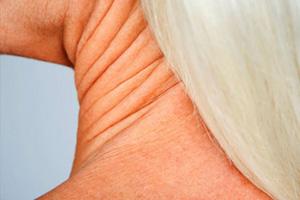 راهکارهایی برای جلوگیری از افتادگی پوست گردن