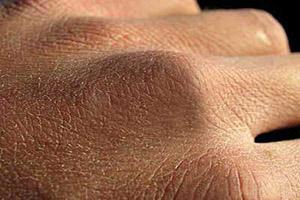 توصیه هایی برای جلوگیری از خشکی پوست در پاییز