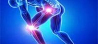 پیشنهاداتی برای کاهش خطر ابتلا به آرتروز