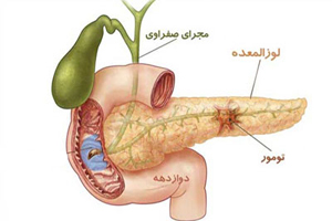 علائم، تشخیص و درمان بیماری لوزوالمعده