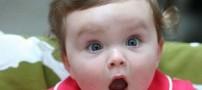 این دختر صاحب بزرگترین لب ها در دنیاست! (عکس)