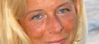 دگرگون شدن احساس و زندگی یک زن پس از اسیدپاشی (عکس)