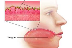 علت بد مزگی دهان در دوران بارداری چیست؟