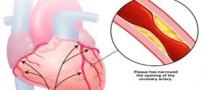 چرا قلب دچار گرفتگی می شود؟