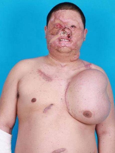 مردی که روی سینه اش صورت انسان رشد می کند! (عکس)