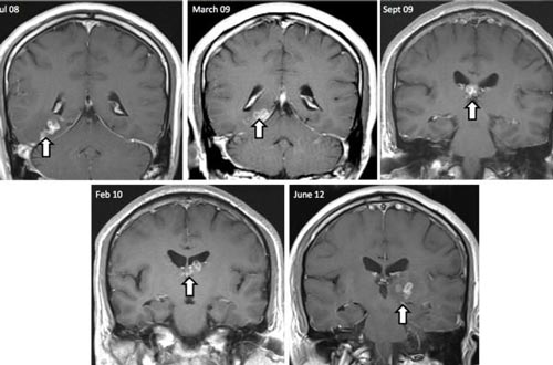 رشد کرم 40 میلی متری در مغز مرد انگلیسی (عکس)