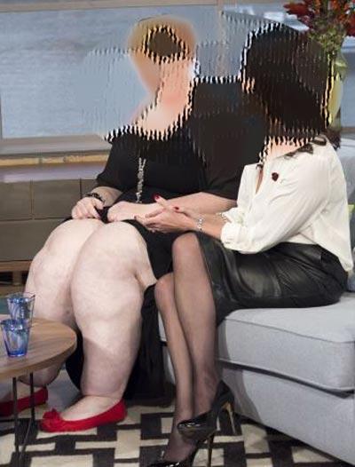 این خانم به خاطر پاهایش قدرت راه رفتن ندارد! (عکس)