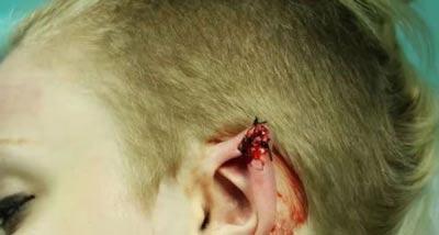 جراحی گوش این دختر برای شبیه شدن به گوش گرگ (عکس)