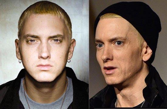 دگرگونی خواننده مشهور پس از ترک اعتیاد (عکس)