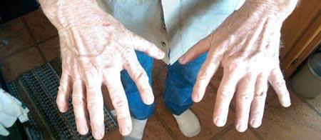 مرد ناشناسی که 12 انگشت دارد! (عکس)