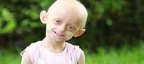 پیرزنی که فقط 11 سال سن دارد! (عکس)