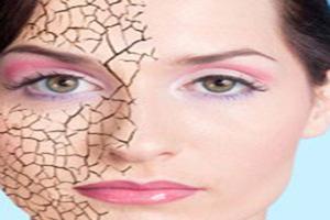 چگونه از خشکی پوست در سرما جلوگیری کنیم؟