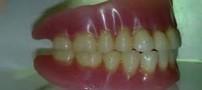 آیا راهکاری برای لقی دندان مصنوعی وجود دارد؟