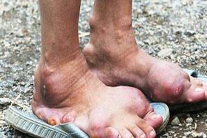 بیماری عجیب در میان افراد روستایی در چین (عکس)