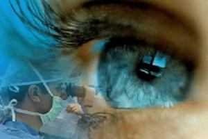 نکاتی که باید قبل از لیزر چشم بدانید