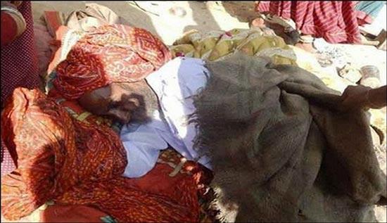 پیرمردی که قبل از سوختن زنده شد! (عکس)