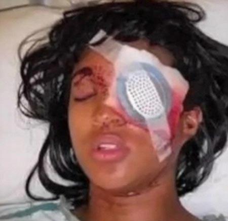 این خانم با شلیک پلیس بینایی اش را از دست داد + تصویر