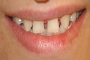 دندان های فاصله دار را چگونه درمان کنیم؟