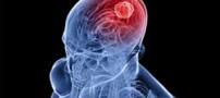 نشانه های تومور مغزی را بشناسید