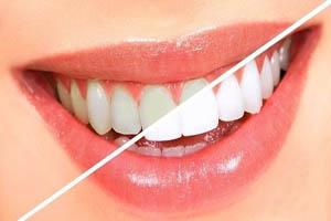 ماده ای که دندان ها را سفید می کند