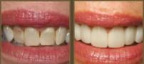 درباره لامینیت دندان چه می دانید؟