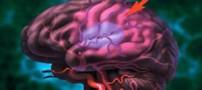مهمترین علت سکته مغزی چیست؟