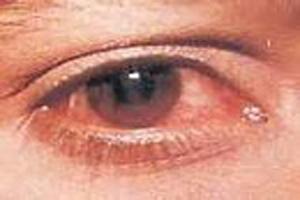 چرا گاهی چشم ها بیش از حد قرمز می شوند؟