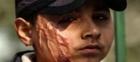 آرزوی پسر 11 ساله قربانی اسیدپاشی (عکس)