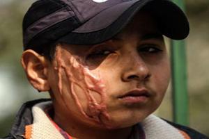 قربانی ۱۱ ساله اسید پاشی آرزو دارد که! (عکس)