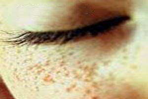 15 راه موقتی برای درمان کک و مک