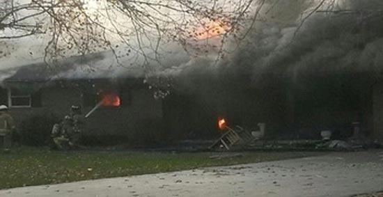 زنده ماندن دختر 16 ساله پس از سوختن در آتش (عکس)