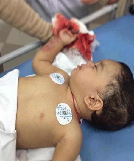 کنده شدن انگشت نوزاد در آسانسور (عکس 15+)