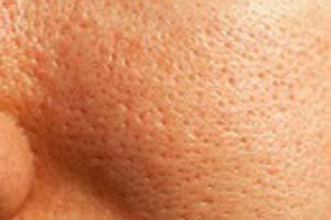 علت و راه درمان منافذ بزرگ روی پوست