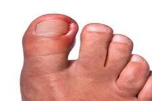 علل و درمان فرو رفتن ناخن در گوشت پا