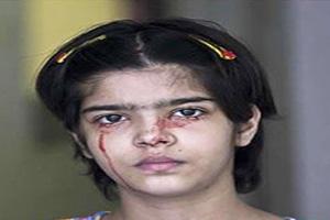 دختری که از تمام بدنش خون خارج می شود! (عکس)
