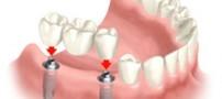 نحوه مراقبت از ایمپلنت دندانی