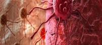 آیا واقعا میتوان از سرطان جلوگیری کرد؟