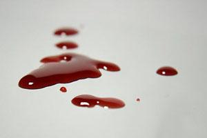 کشتن دختر ۱۷ساله برای سوختن غذا! (عکس)
