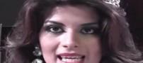 مرگ دوشیزه زیبایی در اثر جراحی زیبایی (عکس)