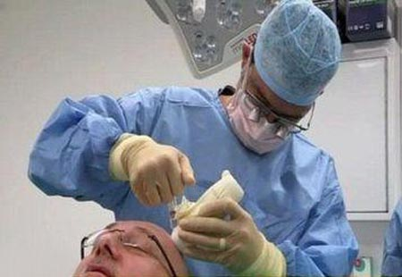 بدشانسی مرد کچل برای جراحی موهایش (عکس)