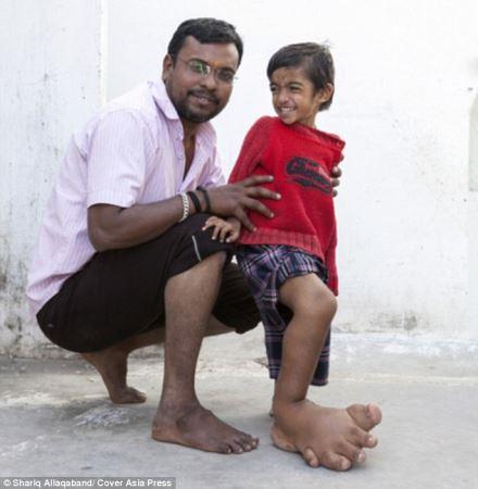 پسری که پای راست او 6 کیلو است (عکس)