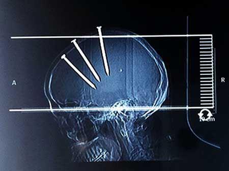 تصاویر عجیبی که پزشکان دنیا را شوکه کرد!
