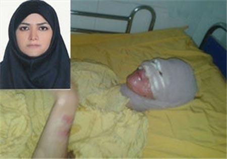 پدری که روی دختر خود اسید پاشید! (عکس)